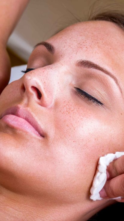 chemical peel insurance