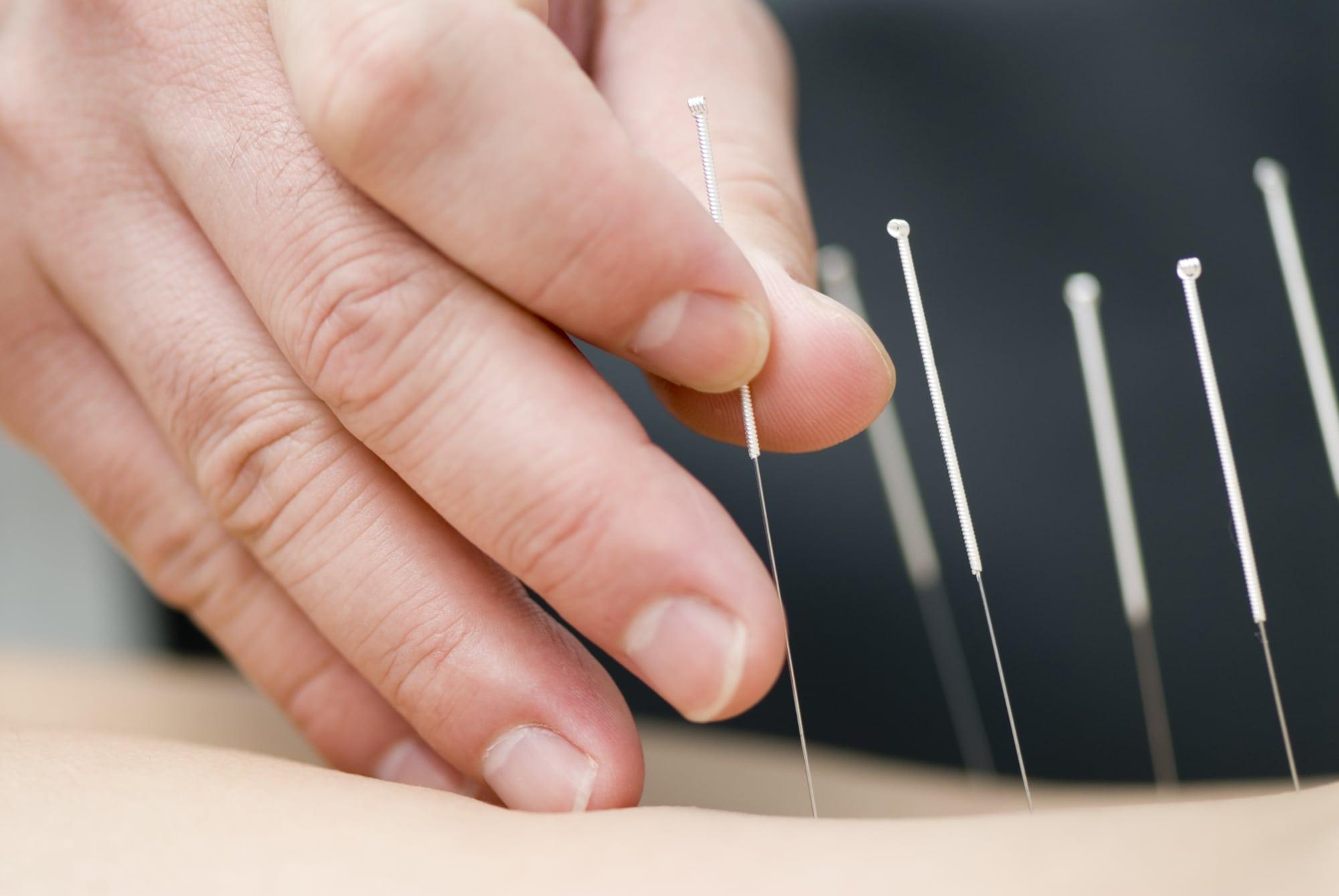 british acupuncture council registration