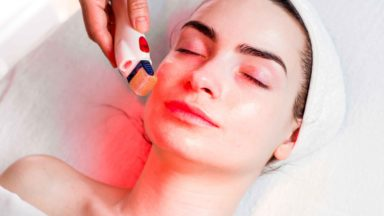 What is Micro-needling Therapy & what insurance do you need?